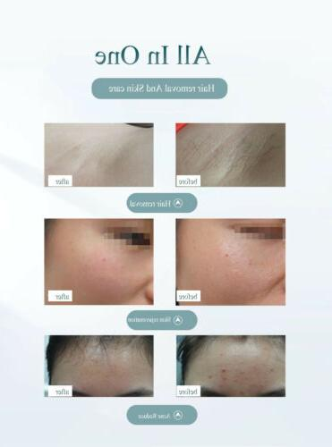 Laser Hair Removal Permanent 900000