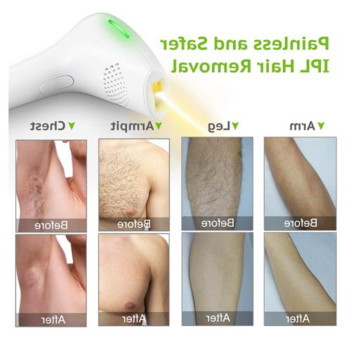 LCD Laser Hair Removal Permanent Facial Whole Painless